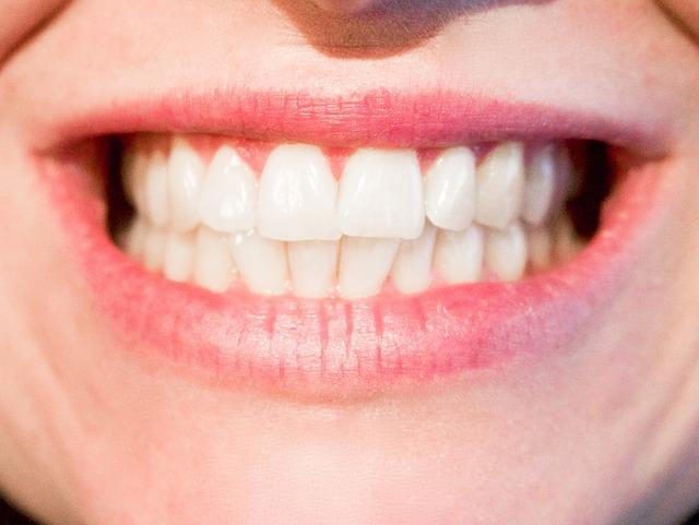 לפני אחרי טיפולי שיניים