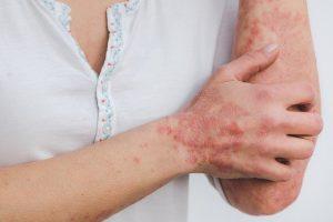 טיפול טבעי לאנדומטריוזיס
